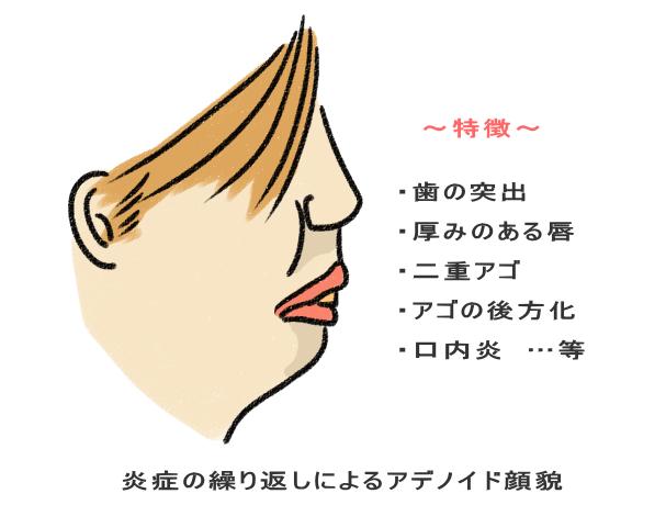 炎症の繰り返しによるアデノイド顔貌