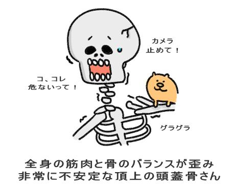 全身の筋肉と骨のバランスが歪み 非常に不安定な頂上の頭蓋骨さん