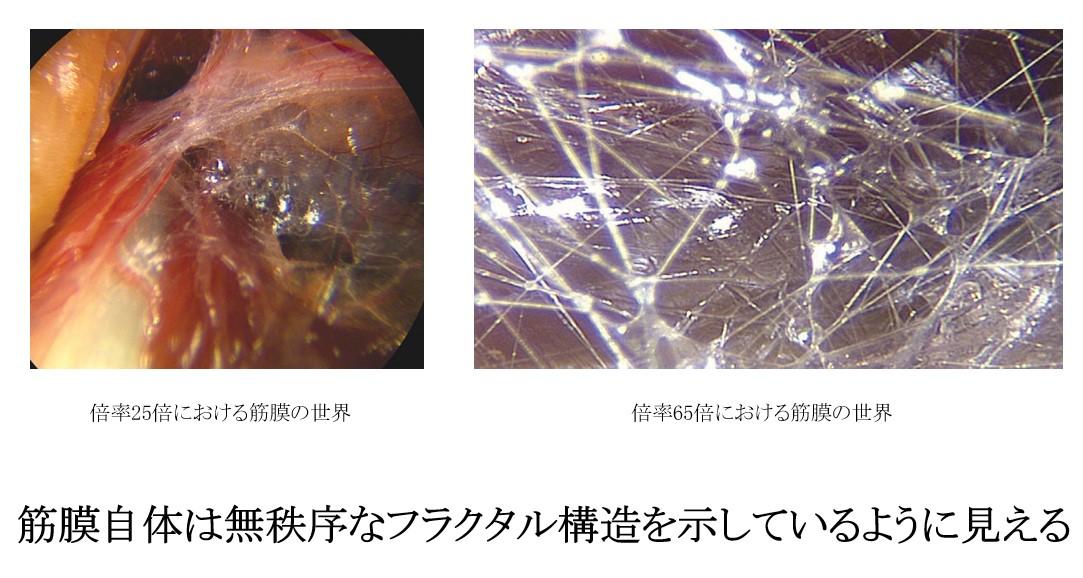 f:id:neurosamasama:20210301221339p:plain