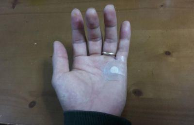 ばね指の手術で注射をされた後