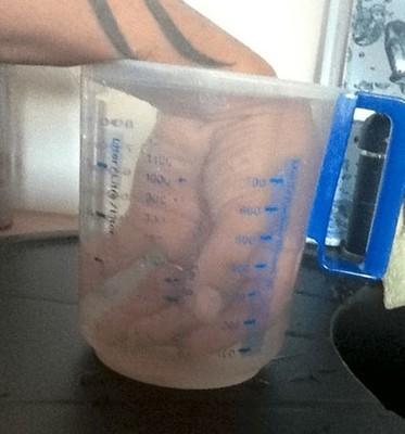 腱鞘炎の治療のためお湯で血行促進