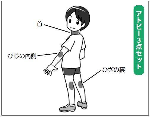 f:id:nezujiro:20180619180836j:plain