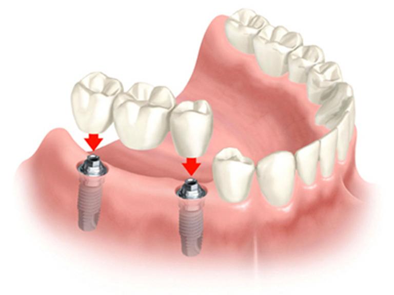 Răng sứ thẩm mỹ có gì tốt