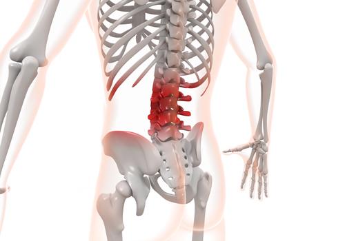 反り腰による腰痛のイメージ写真