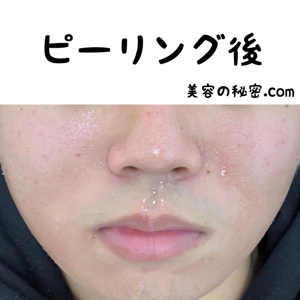 f:id:nokonoko_o:20200806150816j:plain