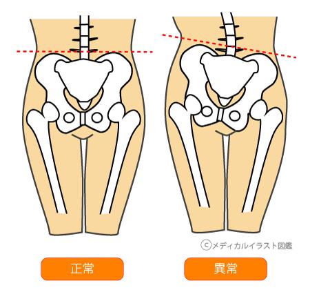 f:id:norichiropractic:20160728185813p:plain