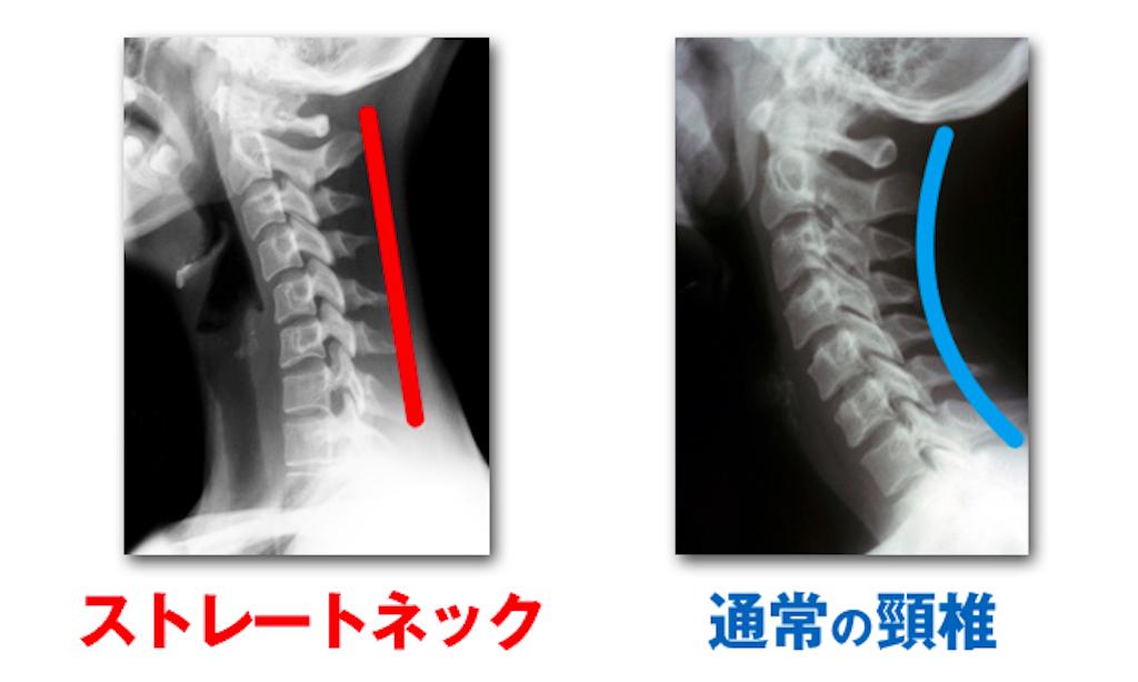 f:id:norichiropractic:20161024091620p:image