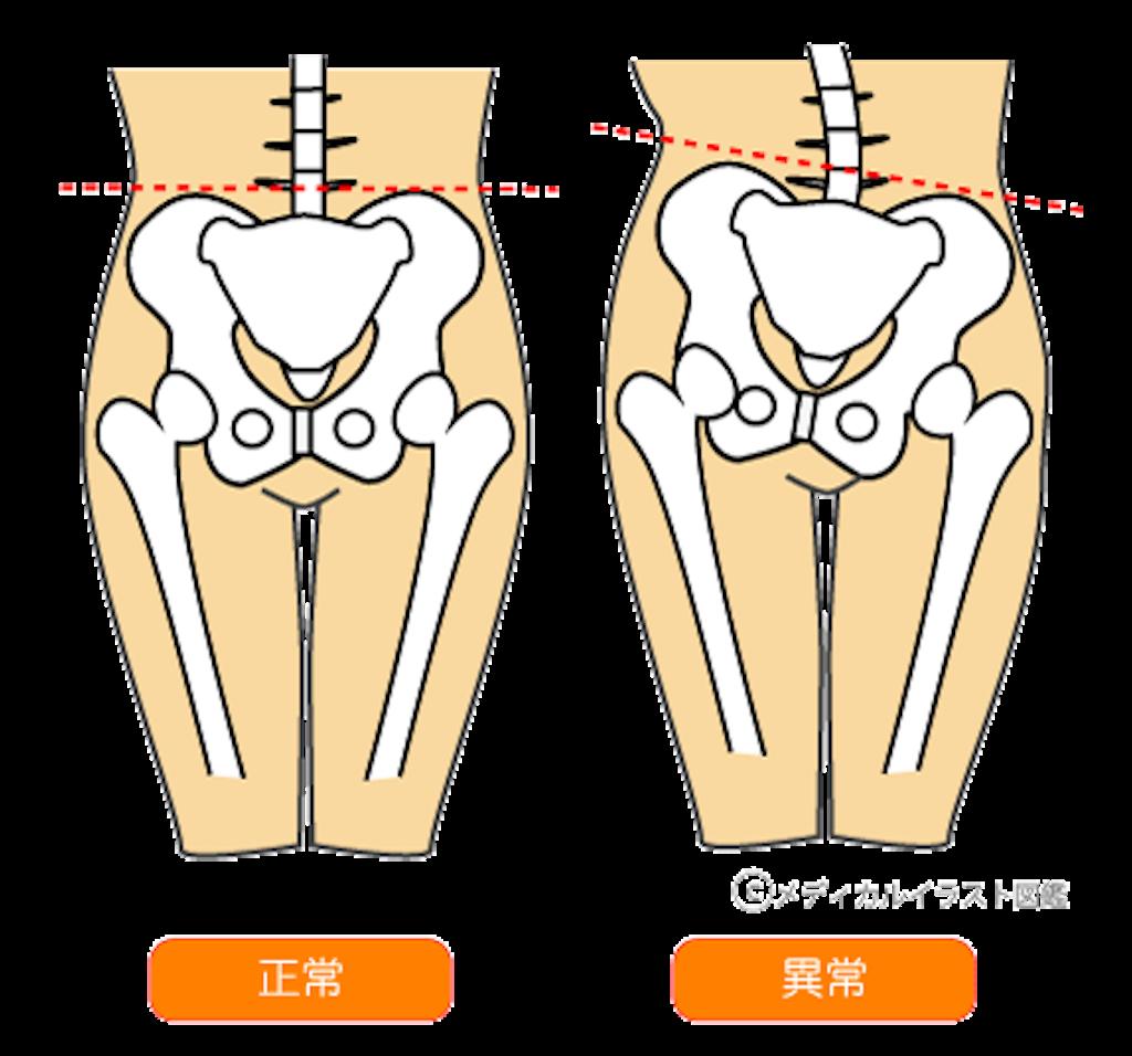 f:id:norichiropractic:20170212110815p:image