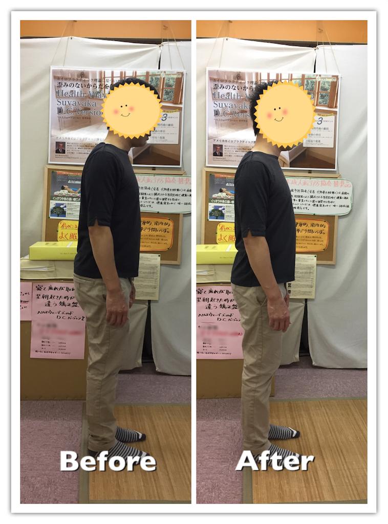 f:id:norichiropractic:20171001231448p:image