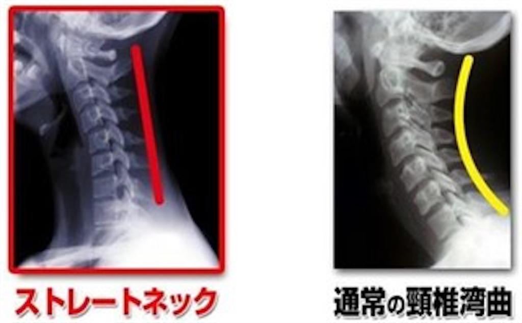 f:id:norichiropractic:20171020082422j:image