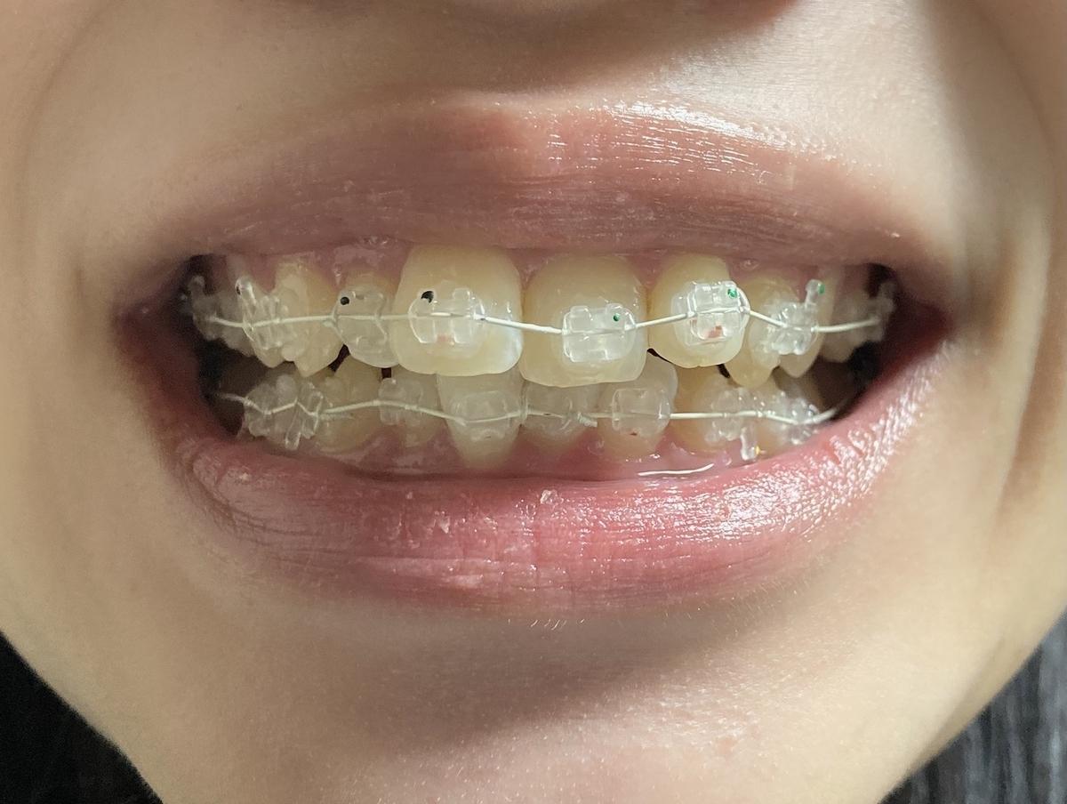 歯列矯正 表側矯正 ワイヤー矯正 1ヶ月前