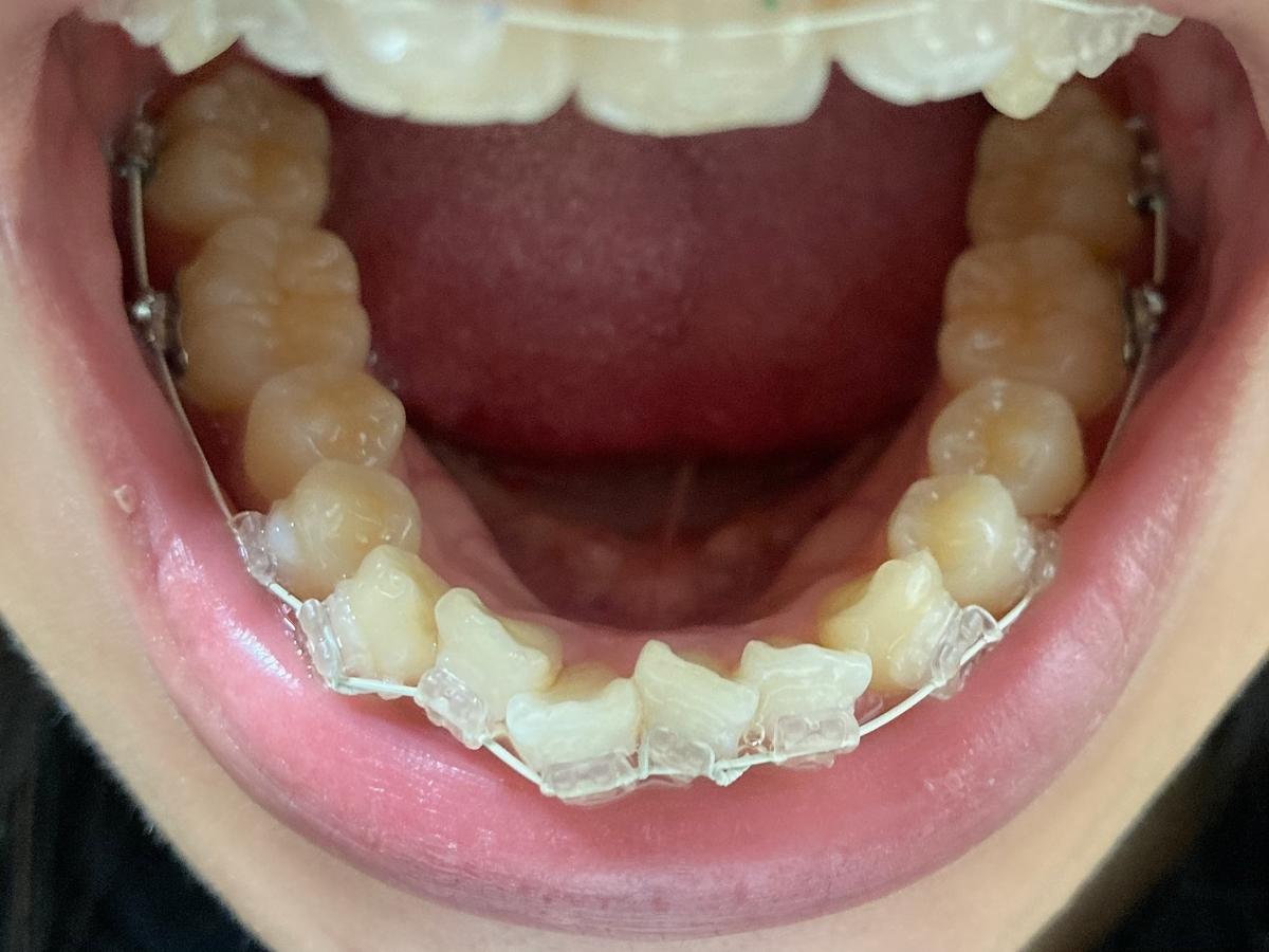 歯列矯正 表側矯正 1ヶ月前