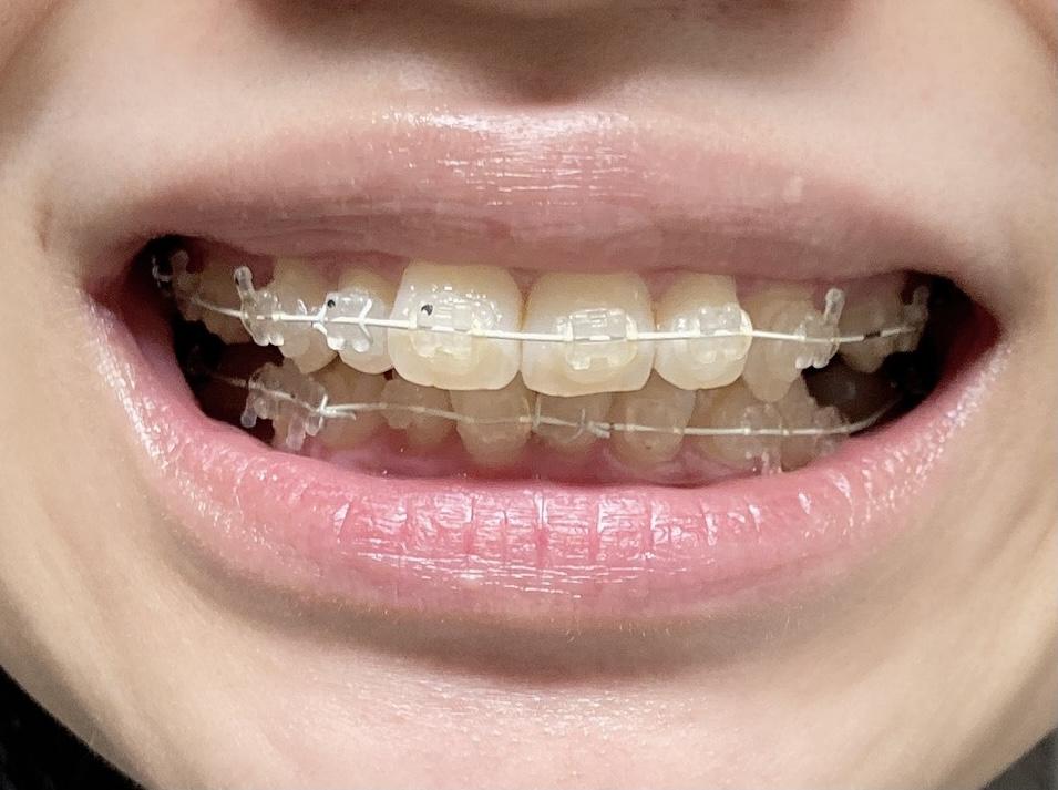 歯列矯正 表側矯正 ワイヤー矯正 1ヶ月後