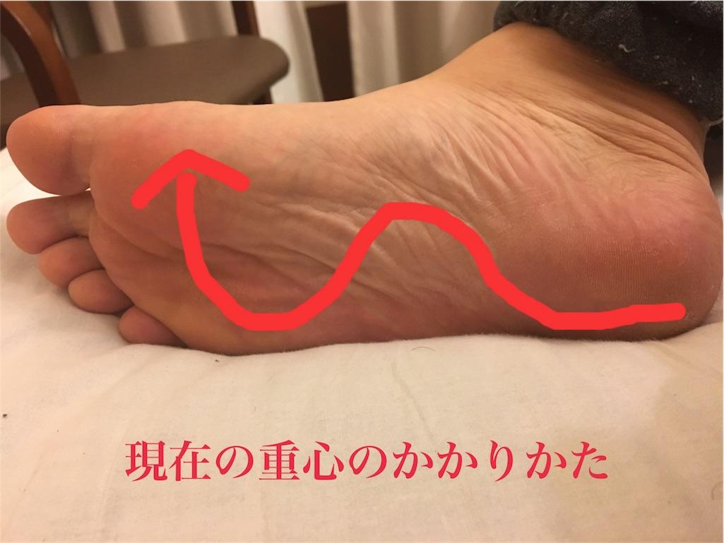 f:id:notfriend404:20170117181011j:image