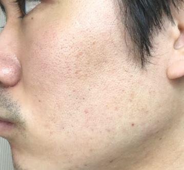 f:id:nurahikaru:20170214173829j:plain
