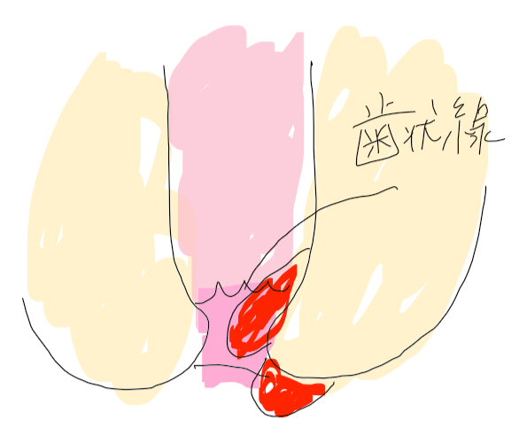 f:id:nurstudy:20200622210719p:plain