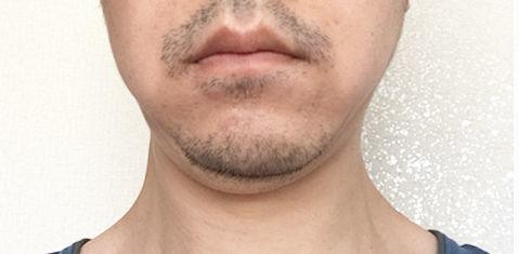 2019/05/16の顔下半分