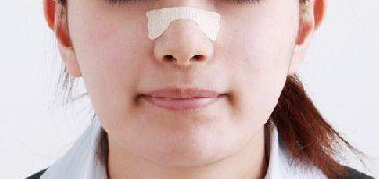 鼻腔 拡張 テープ 鼻づまり 治す