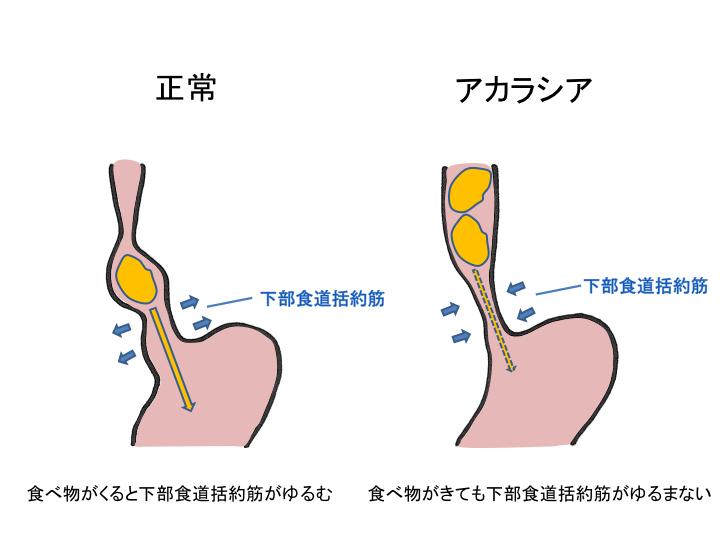 f:id:ohasikakaka:20161016112250p:plain