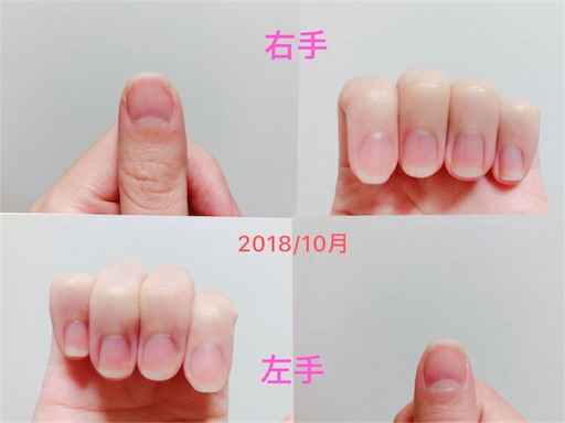 f:id:oimokura:20181021182946j:image