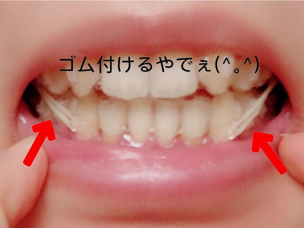 f:id:oimokura:20190114121017j:image