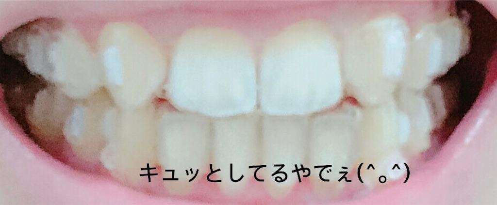 f:id:oimokura:20190302145604j:image