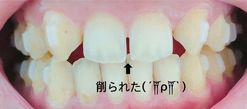 f:id:oimokura:20190310141954j:image
