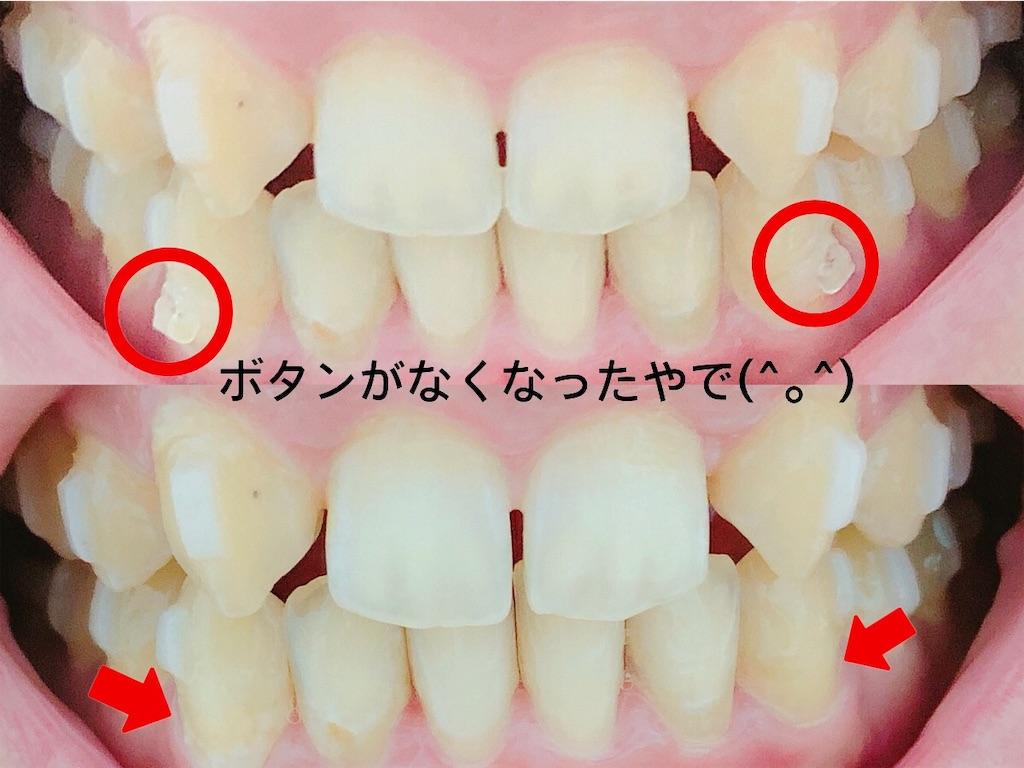 f:id:oimokura:20190401205312j:image