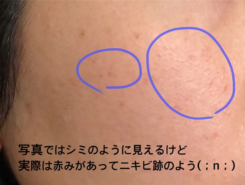 f:id:oimokura:20190511120951j:image
