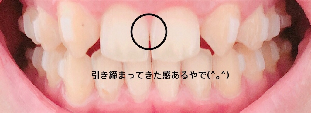 f:id:oimokura:20190520202306j:image