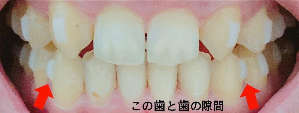 f:id:oimokura:20190609115632j:image