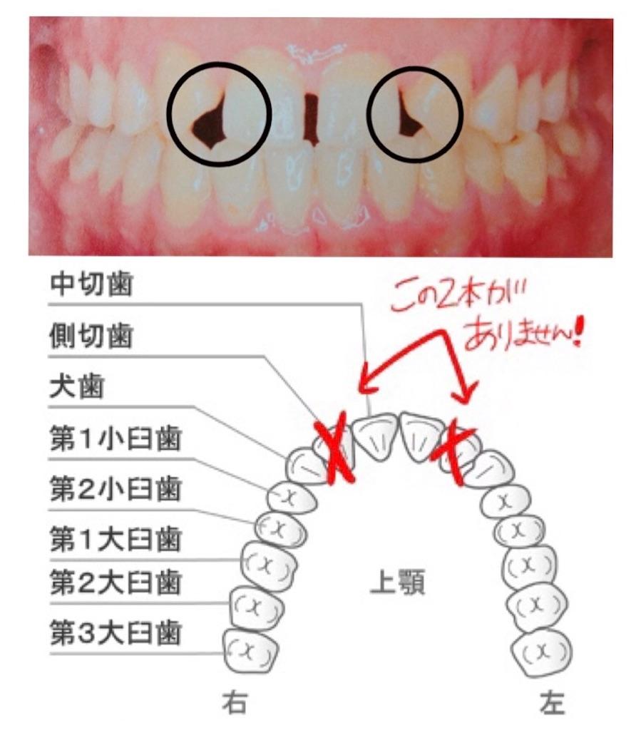 f:id:oimokura:20191106215558j:plain
