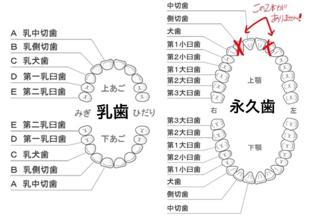 f:id:oimokura:20191106215605j:plain