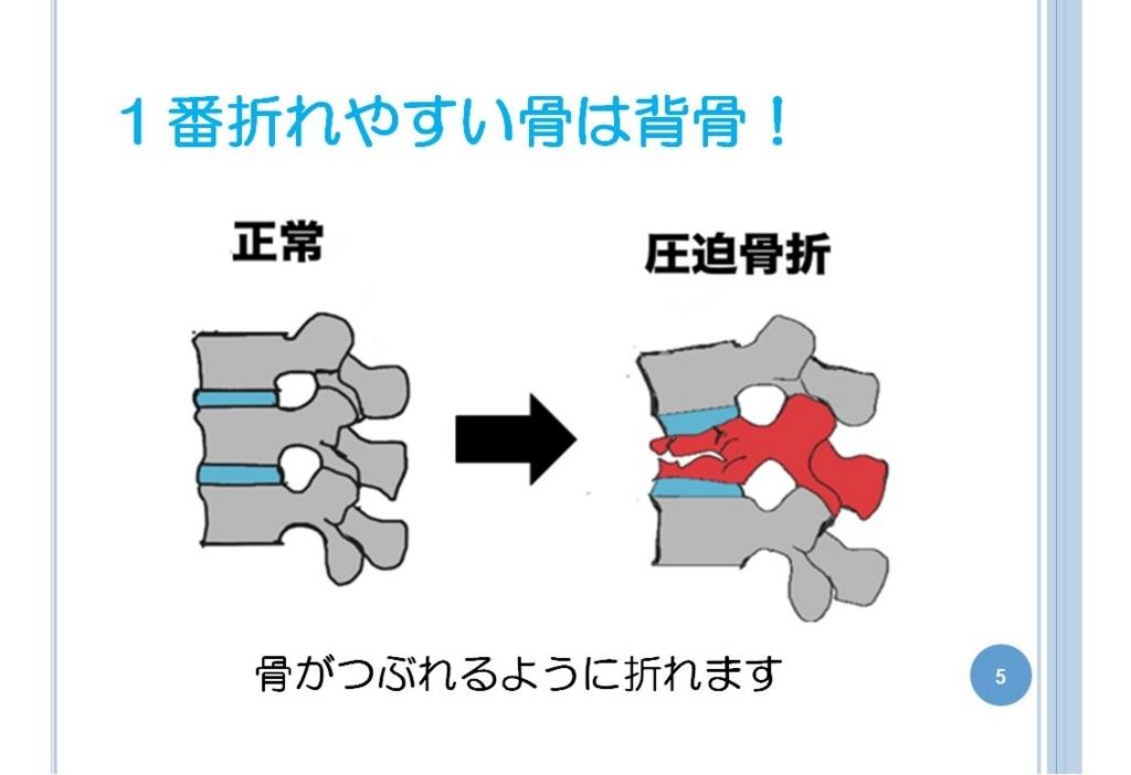 f:id:oishi-hp:20180808112026j:plain