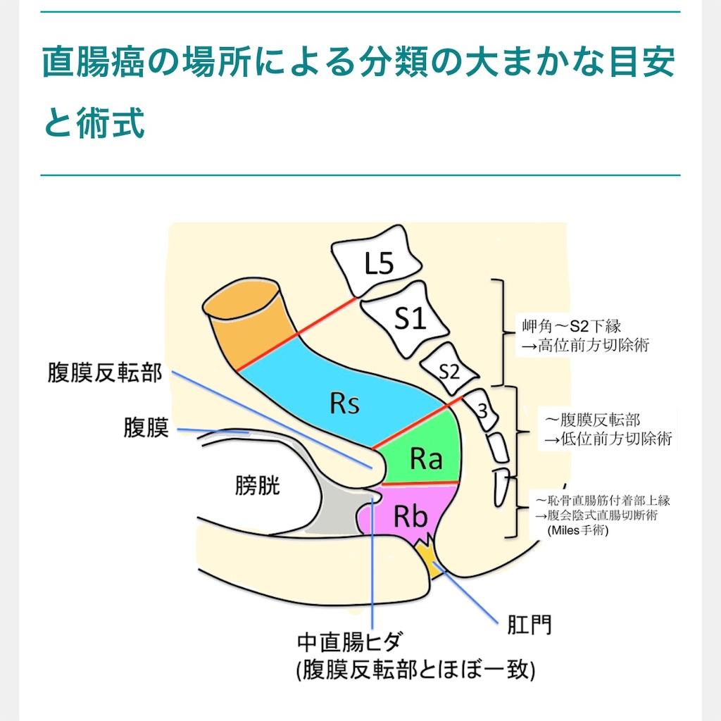 f:id:okatamako:20200307192708j:image