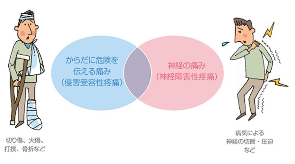 f:id:okatamako:20200422163858j:image