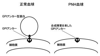 GPIアンカー