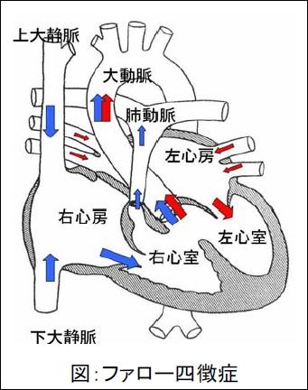 ファロー四徴症の概念図