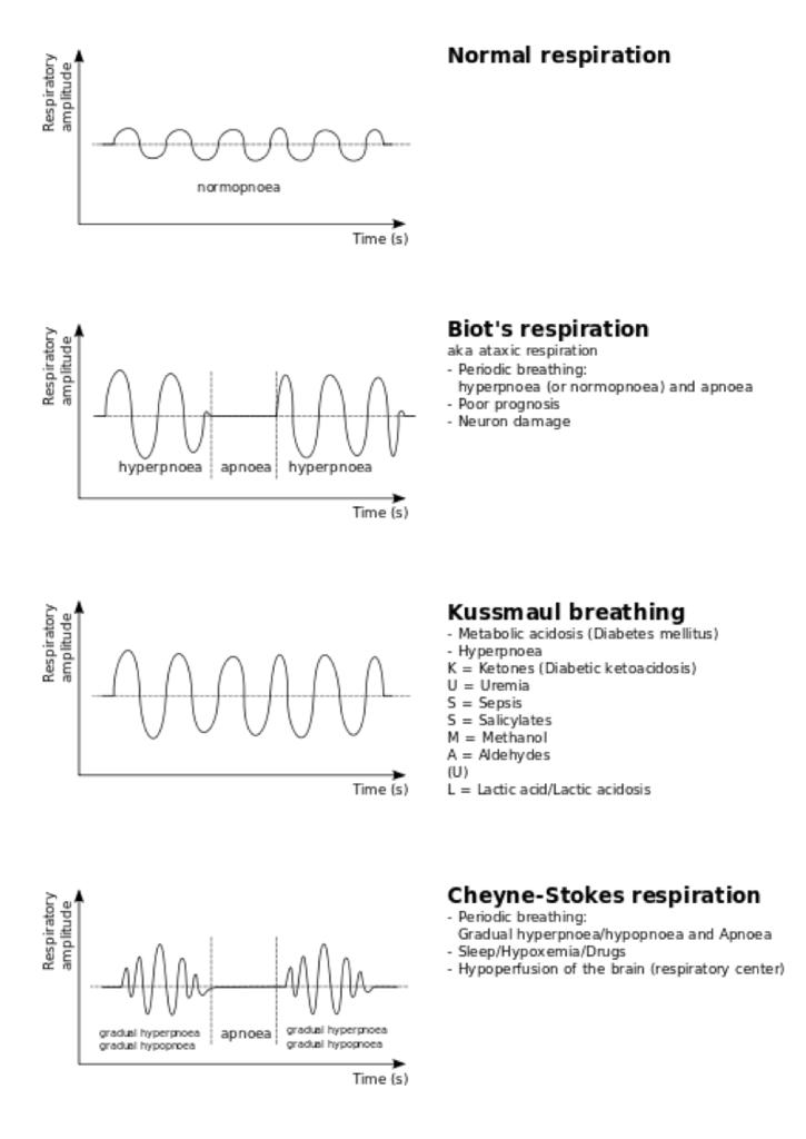 呼吸パターンのグラフ