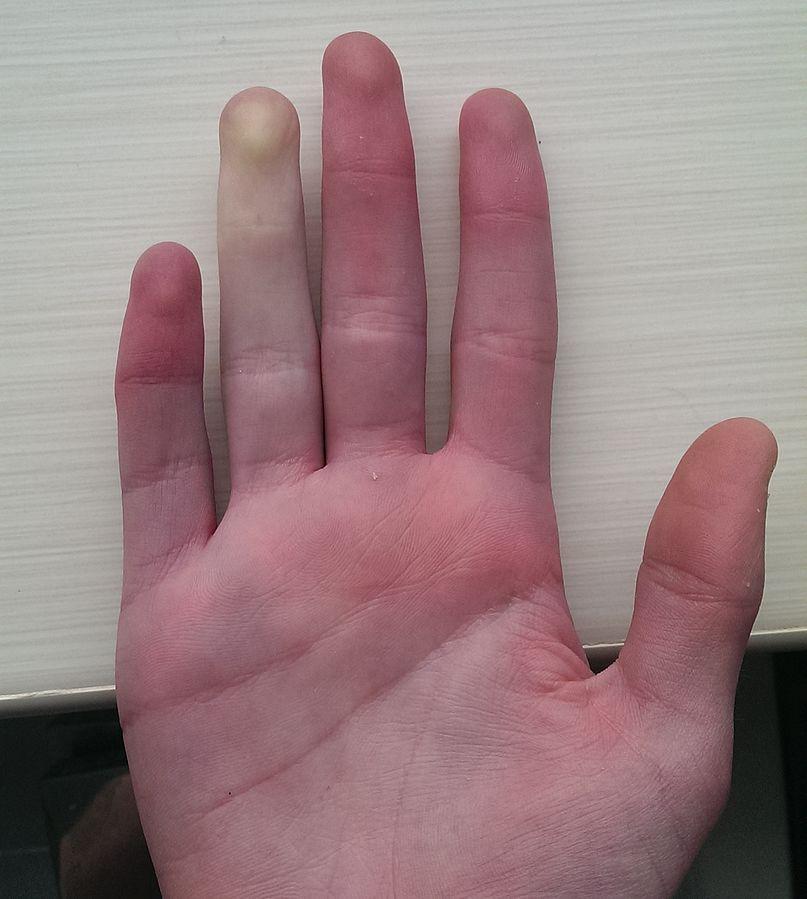 レイノー現象の指