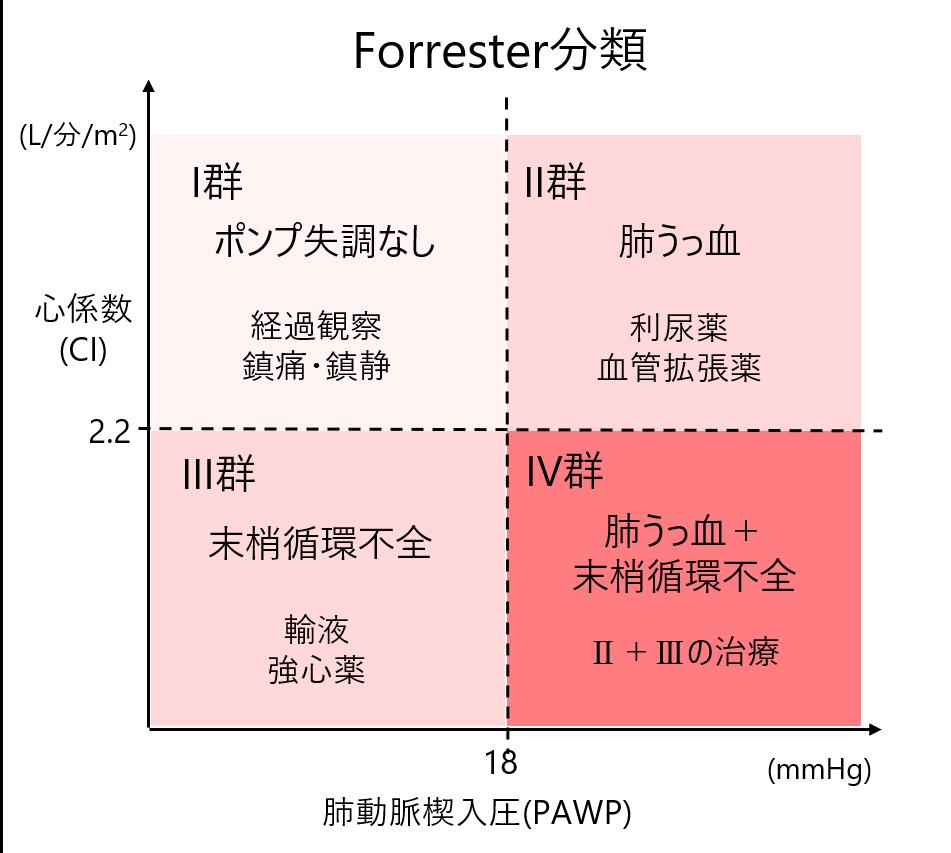 Forrester分類
