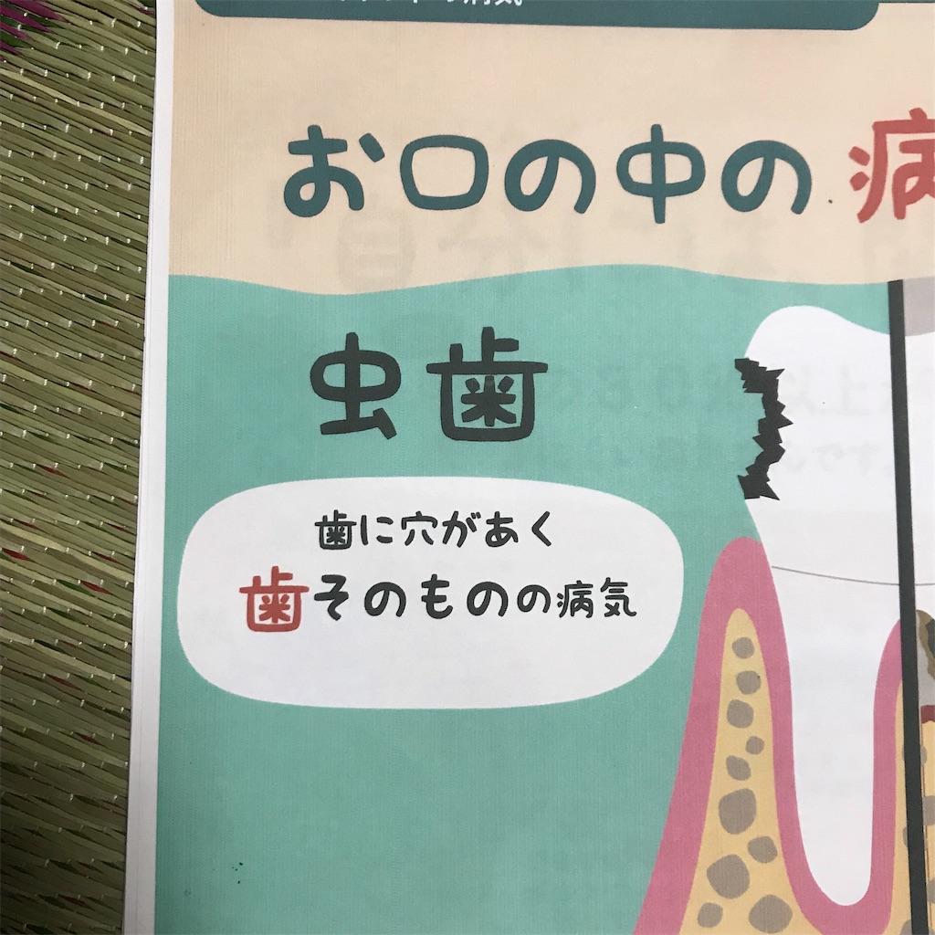 f:id:okudama-mo:20190817204121j:image