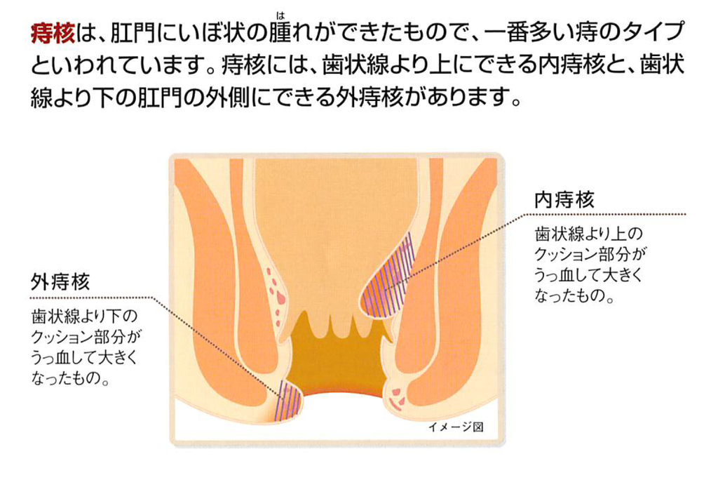 f:id:okumura-clinic:20181214094617j:plain