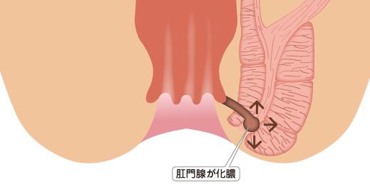 f:id:okumura-clinic:20201119174658p:plain
