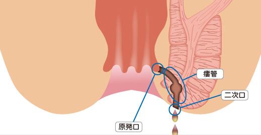 f:id:okumura-clinic:20201119174811p:plain