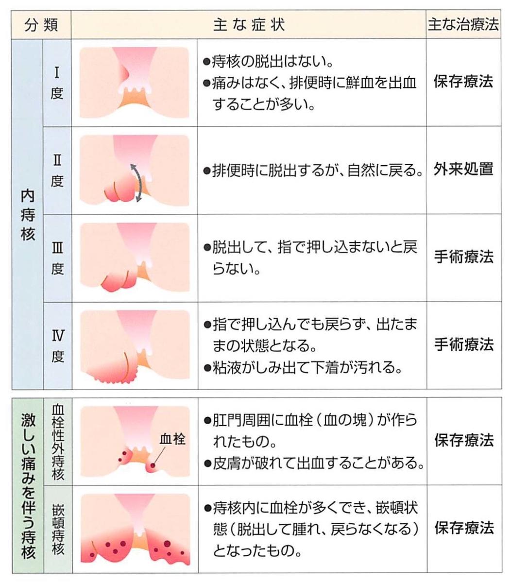 f:id:okumura-clinic:20210318165255j:plain