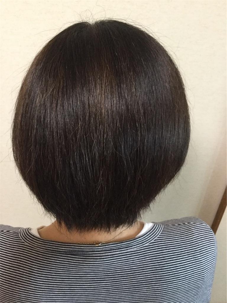 f:id:omochiusagi:20171006155440j:image