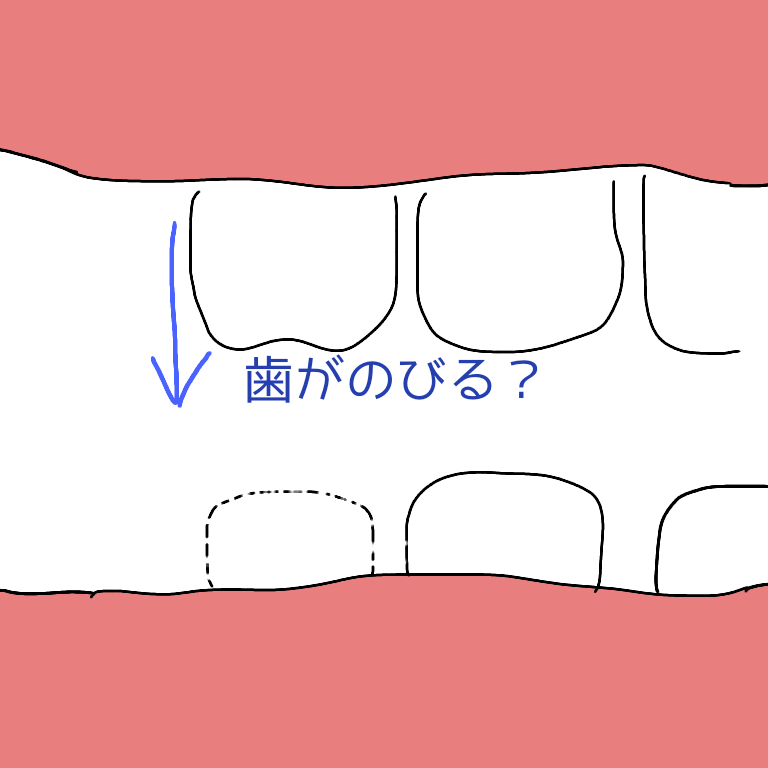 f:id:omoteura1203:20190716103822p:plain