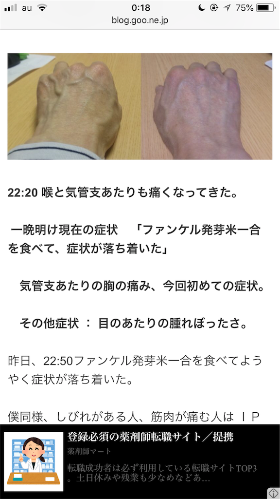 f:id:omuyakisoba:20180601114845p:image