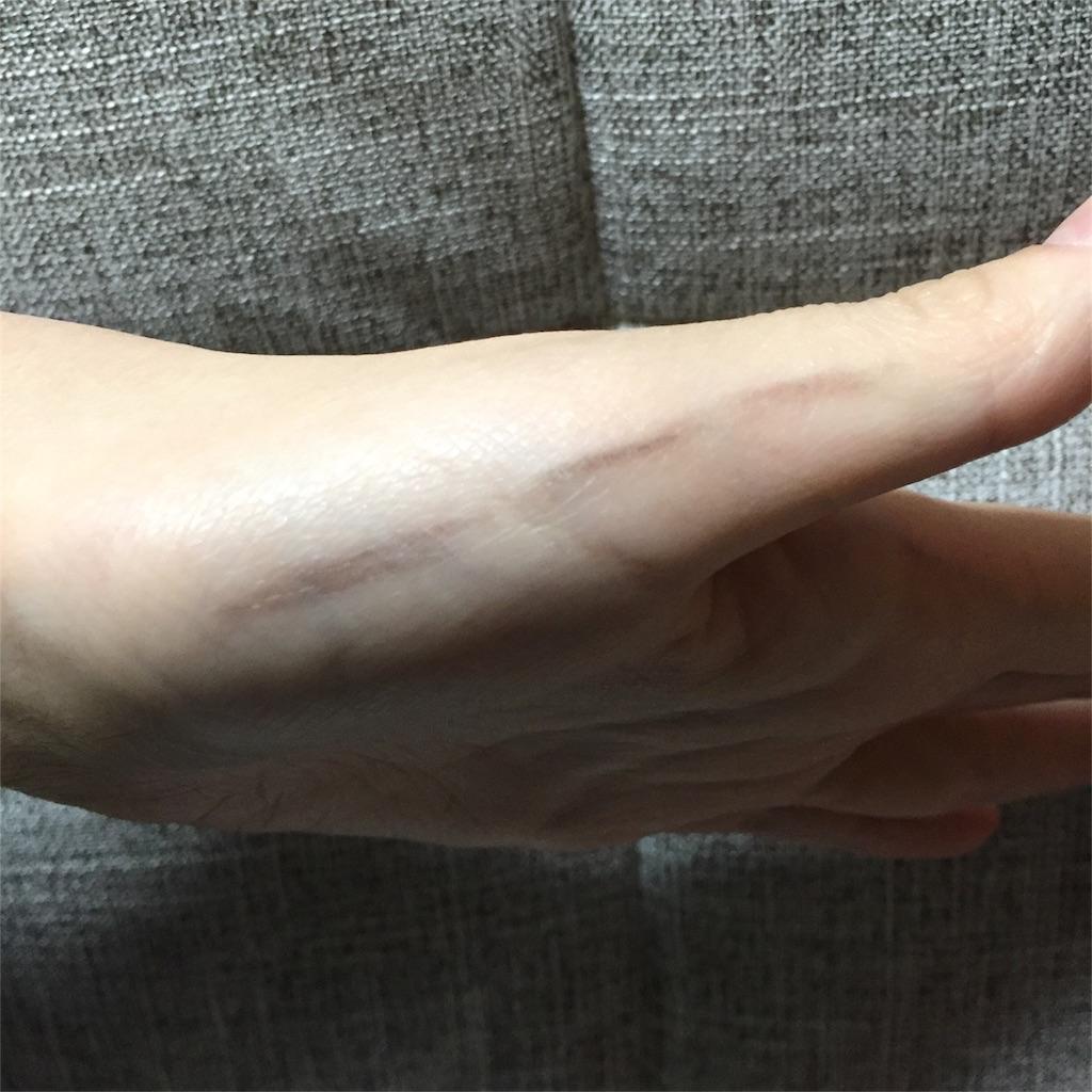 f:id:oninokonoko:20170119002648j:image